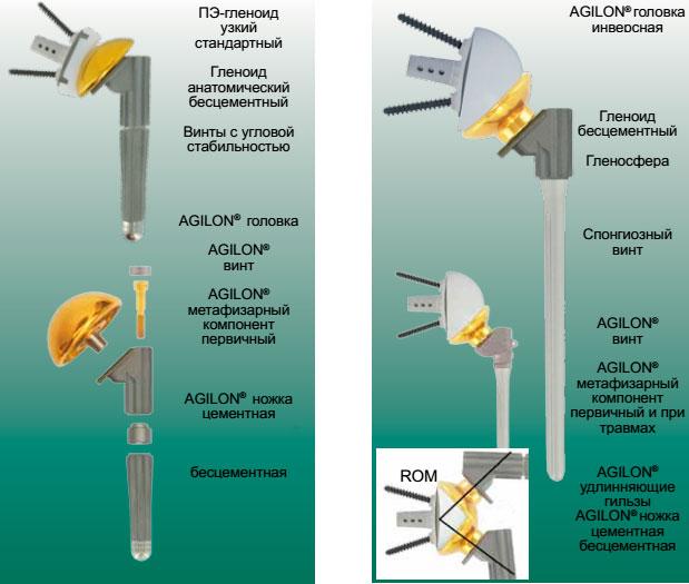 AGILON® — инверсной (обратной)версии (при травмах или артрозах плечевого сустава)