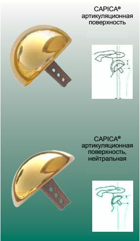 CAPICA® система замещения артикуляционной поверхности головки плечевой кости