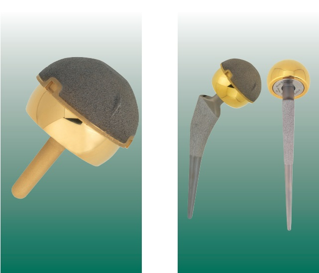ACCIS® система эндопротезирования тазобедренного сустава с TiN-металокерамическим покрытием