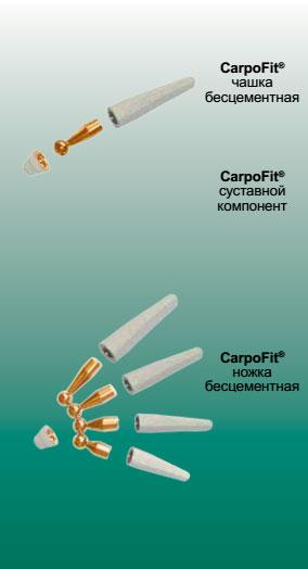 CarpoFit® имплантат запястно-пястного сустава I — го пальца