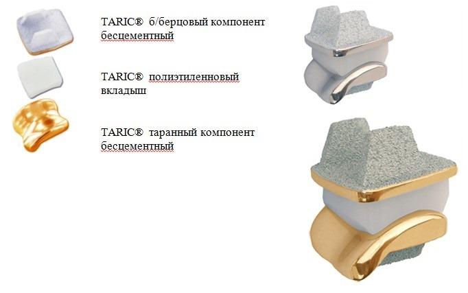 taric-yendoprotez-golenostopnogo-sustava