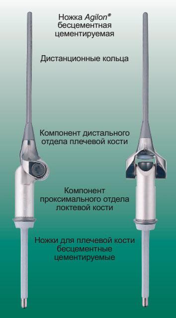 MUTARS® имплантаты для замещения проксимального отдела локтевой кости