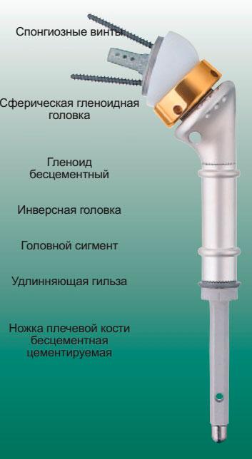 MUTARS® инверсный имплантат плечевой кости