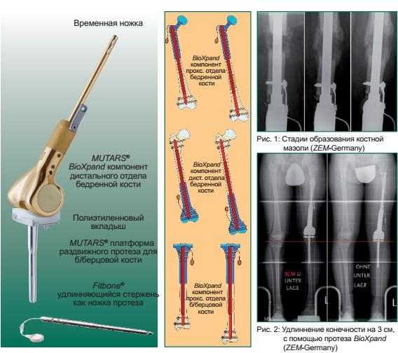 MUTARS® BioXpand биологические раздвижные (растущие) эндопротезы