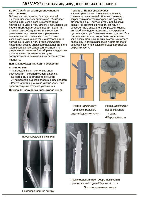 mutars-protezy-dlya-individalnogo-izgotovleniya-1