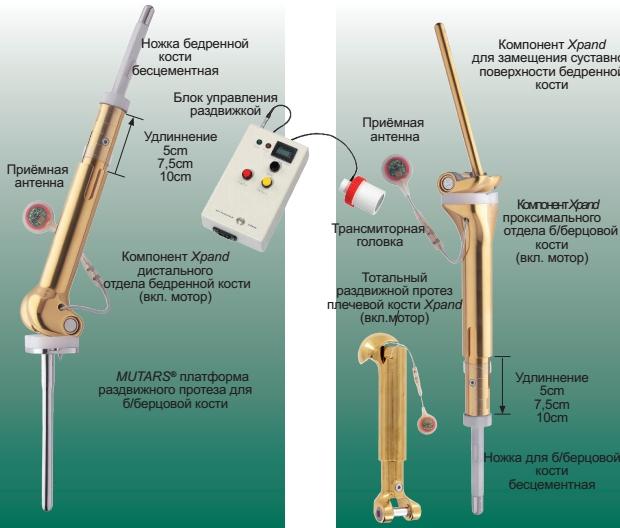 MUTARS® Xpand механические раздвижные (растущие) эндопротезы