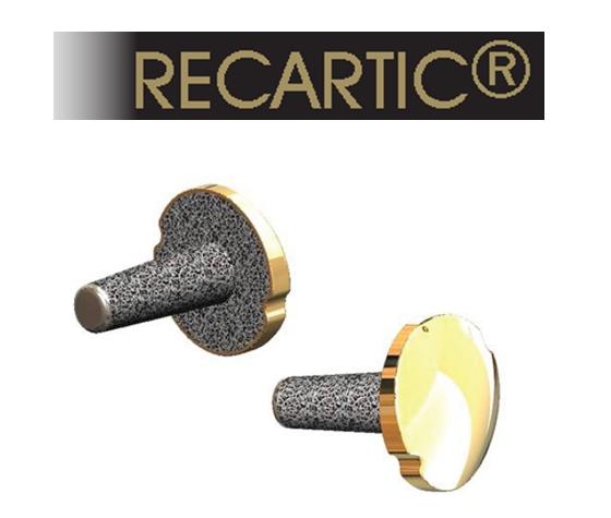 Recartic® - имплантант для частичной замены артикуляционной поверхности коленного сустава